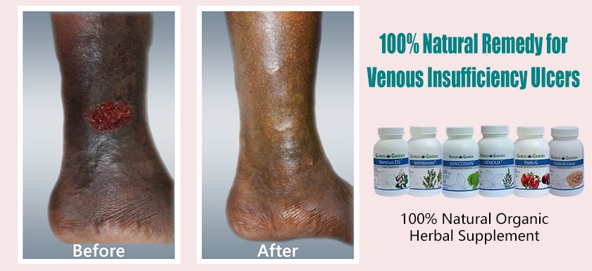 Home Remedies For Spider Veins 100 Natural Ayurvedic Treatments For Varicose Veins